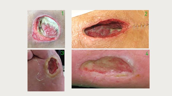 Wound types images